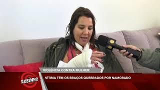 Programa do Rubinho - Mulher tem braço quebrado por namorado parte 3 | TV Sol Comunidade