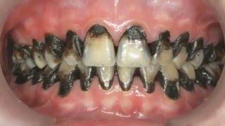 getlinkyoutube.com-Caries Dental los Peores Casos de CARIES