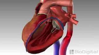 getlinkyoutube.com-3D Medical Animation - Congestive Heart Failure