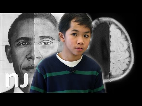 President Obama's message to child missing half his brain