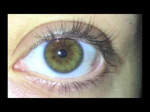 ✿ Iridology ✿ - Eye Review 157 ★★★★★