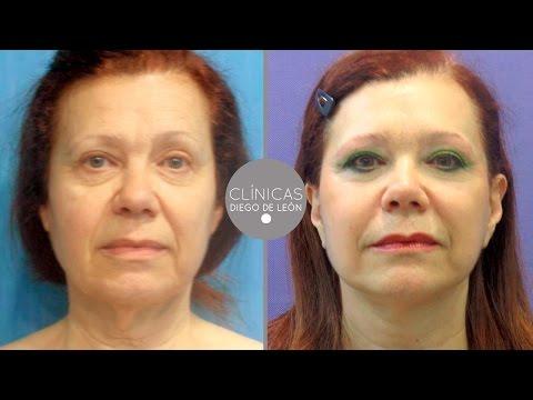 Lifting Facial antes y después | Experiencia Lola