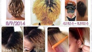 1 year of my natural hair journey | biotin, hairfinity & manetabolism