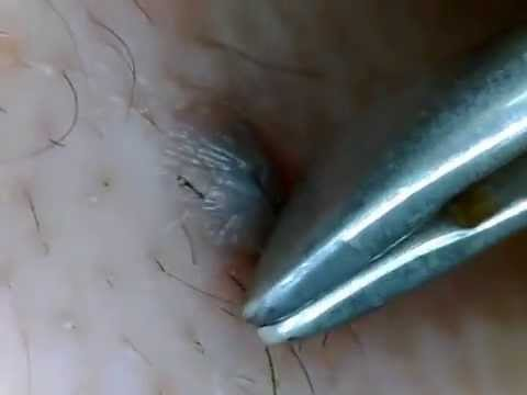 Ingrown Hair Cysts in Dogs