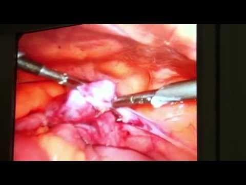 Salpingectomia por video / Salpingectomy by video