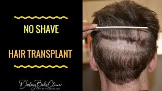 "getlinkyoutube.com-""No shave"" hair transplant with Dr Bhatti at Darling Buds India"