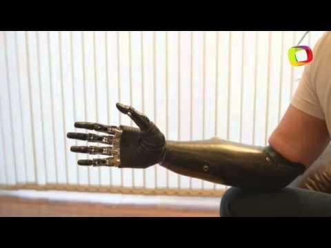 Homem recupera movimentos do braço com prótese hi-tech