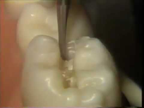 The Amalgam Proximal Box Cavity Preparation