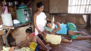 VISITING BAJAU VILLAGE. WOMAN WITH BROKEN NECK, SEA GYPSIES. CEBU, PHILIPPINES.