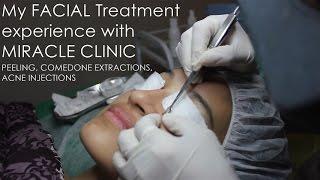 getlinkyoutube.com-Facial Treatment with Miracle Clinic | Peeling, Acne Extraction & Injection | Nadya Aqilla