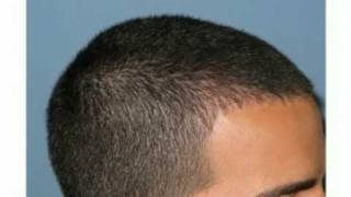 getlinkyoutube.com-FUE hair transplant, hairline example by  Dr Paul Shapiro of Shapiro Medical Group