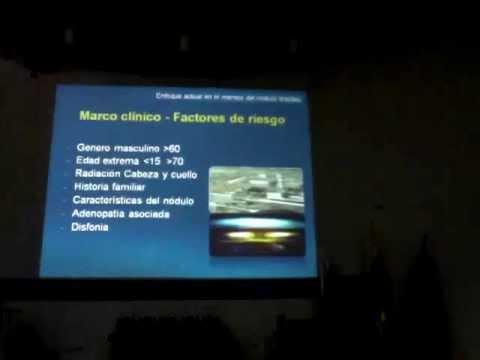 Nódulo tiroideo - Dr. Andrés Alvarez