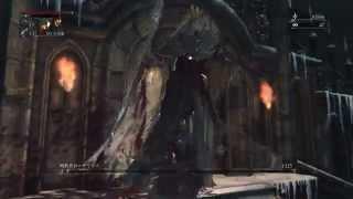 getlinkyoutube.com-Bloodborne「ローゲリウスの簡単な倒し方」
