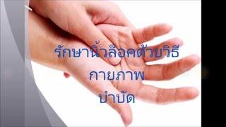 getlinkyoutube.com-รักษานิ้วล็อคด้วยวิธีกายภาพบำบัด