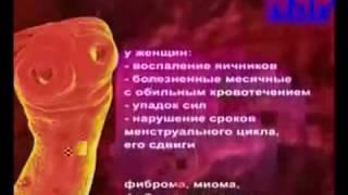 getlinkyoutube.com-Pasożyty są wewnątrz nas (cześć 3/3)