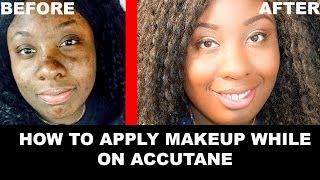 getlinkyoutube.com-Accutane Makeup How To