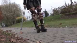 getlinkyoutube.com-Ellie Leg Braces