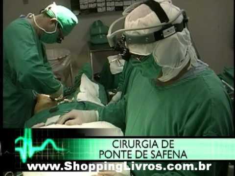 Procedimentos Cirurgicos - Ponte de Safena - ShoppingLivros