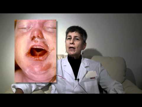 Syphilis Video