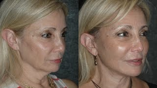 getlinkyoutube.com-Local Anesthesia Neck Lift Before and After 59 Year Old with Turkey Neck and Jowls