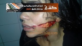 getlinkyoutube.com-الفتاة التي مُزٍق وجهها بمراكش تستنجد بالملك محمد السادس
