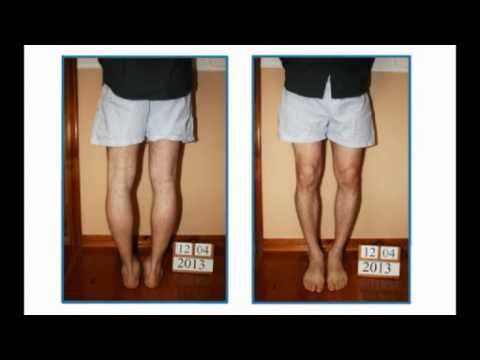 Piernas arqueadas (genu varo) tratamiento - Experiencia del paciente de Colombia