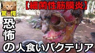 getlinkyoutube.com-【閲覧注意】恐怖の人喰いバクテリアによる壊死性筋膜炎