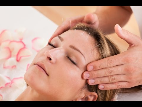 Amazing Benefits of Acupuncture for Pain