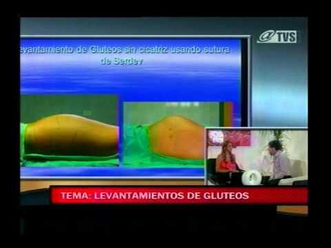 Dr. Jaime Lebed : Levantamiento de Gluteos con Hilos de Serdev.