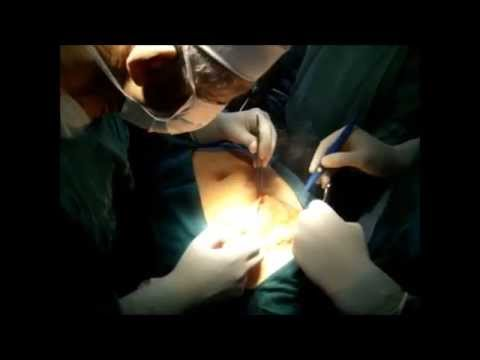 Laparotomy for icterus mechanicus.Cholecystectomy with TEA