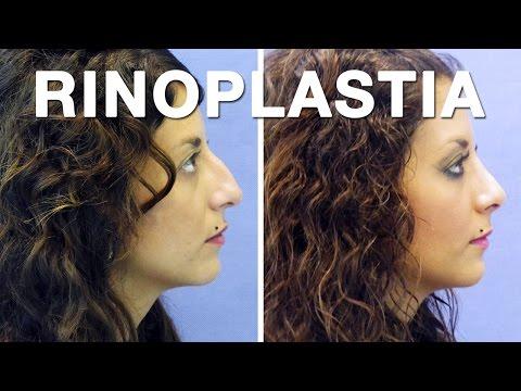 Rinoplastia y Septoplastia antes y después | Cristina