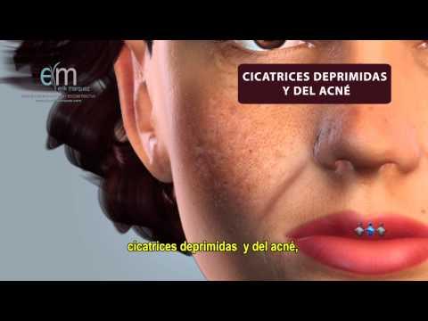 Relleno Facial y de Labios