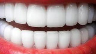getlinkyoutube.com-كيفية تبييض الأسنان و جعلها ناصعة البياض بأسهل الطرق
