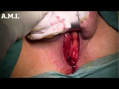 AMI - ATOMS with scrotal port: Single-incision male incontinence surgery