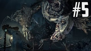 getlinkyoutube.com-Bloodborne The Old Hunters DLC Walkthrough -  Part 5 - How to Beat Ludwig
