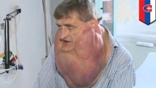 getlinkyoutube.com-Słowackimężczyznausunął6-kilogramowyguzzszyi.