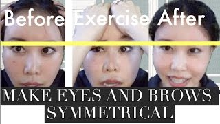 getlinkyoutube.com-How to Make Your Eyes Symmetrical Part 2 | Mini Chiropractic for Eyes and Eye Brows