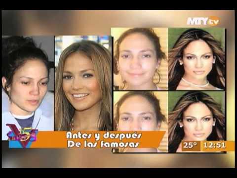 El antes y después de varias famosas