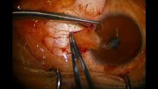 getlinkyoutube.com-Pterygium Excision with Conjunctival Autograft