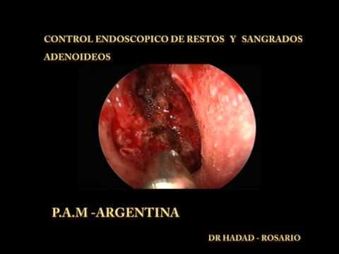 P.A.M - Argentina - Cirugia de Vegetaciones Adenoides con Microdebrider y visión Endoscópica -