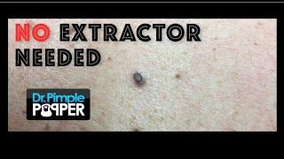 A big blackhead and some seborrheic keratoses treated on the back