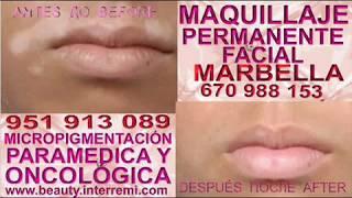 tratamiento vitiligo Vitiligo tratamiento Camuflaje Vitiligo, tratamiento vitiligo