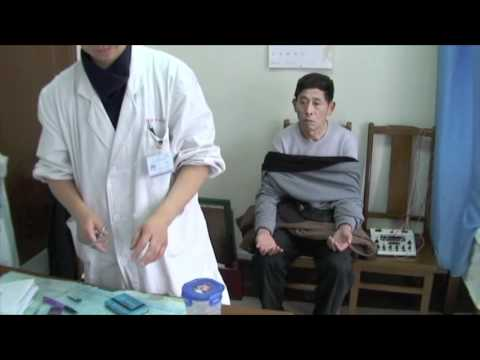 Acupuncture Treatment in Shanghai China