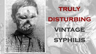 getlinkyoutube.com-TRULY DISTURBING VINTAGE PHOTOS #7 SYPHILLIS AND OTHER DISEASES