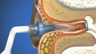 getlinkyoutube.com-OtoClear Ear Irrigation