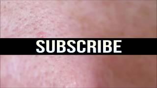 Lamprey Disease!  Parasites, Gross Medical & Trypophobia