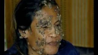 getlinkyoutube.com-Skin Disease