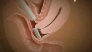 getlinkyoutube.com-MyHEALTH : Cara Menggunakan Pesari Dengan Betul