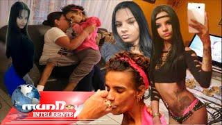La triste historia de Linda Pérez, una víctima de la cirugía plástica