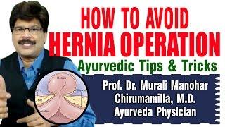 getlinkyoutube.com-How to Avoid Hernia Operation | Prof. Dr. Murali Manohar Chirumamilla, M.D. (Ayurveda)